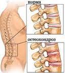 остеохондроз,позвоночник,лечение позвоночника,межпозвоночная грыжа,сколиоз,радикулит,тренажер,купить тренажер,заболевание позвоночника,здоровье,красота