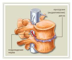 Почему боль в спине отдает в руку и ногу