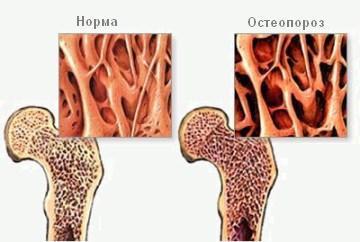 Нарушение структуры костной ткани при остеопорозе