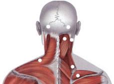 Локализация типичных болевых зон при травме шеи, Боли в шее, боли в затылке, боли в руке, остеохондроз шейного отдела позвоночника, боль в руке, боль в шее, боль между лопаток, слабость в руке, шаткость при ходьбе, головокружение, шум в ушах, вертебробазилярная недостаточность, повреждение межпозвонкового диска, ВБН, Хр. ВБН, боли в шее, продуло шею, переохлаждение шеи, стреляет в шею, шейная боль, дискомфорт в шее, шейный остеохондроз, шейный остехандроз, лечение шеи, лечение шейного отдела, лечение шейного остеохондроза, лечение боли в шее, лечение шейного прострела, лечение шейного позвонка, лечение шейного отдела позвоночника, лечение шейного остеохондроза позвоночника в Москве, лечение шейного отложения солей, отложение солей в шее, отложение солей в шейном отделе, больно поворачивать голову, больно поворачивать шею, больно наклонять голову, больно наклонять шею, больно вертеть шею, больно вертеть голову, прострел в руке, треск в шее, хруст в шее, острая травма шеи и шейно-затылочного перехода