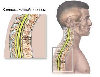 Компрессионный перелом позвоночника, вид сбоку, Перелом позвоночника, неосложнённые переломы позвоночника, осложнённые переломы позвоночника, неврологическая симптоматика, компрессионный перелом позвоночника, компрессионный перелом позвонка, компрессионный перелом позвонков, лечение перелома позвоночника, лечить перелома позвоночника