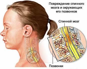Компрессионный перелом позвоночника со сдавлением спинного мозга, вид сбоку, Перелом позвоночника, неосложнённые переломы позвоночника, осложнённые переломы позвоночника, неврологическая симптоматика, компрессионный перелом позвоночника, компрессионный перелом позвонка, компрессионный перелом позвонков, лечение перелома позвоночника, лечить перелома позвоночника