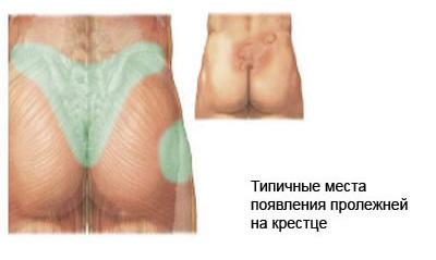 Пролежни, перелом позвоночника, неосложнённые переломы позвоночника, осложнённые переломы позвоночника, неврологическая симптоматика, компрессионный перелом позвоночника, компрессионный перелом позвонка, компрессионный перелом позвонков, лечение перелома позвоночника, лечить перелома позвоночника