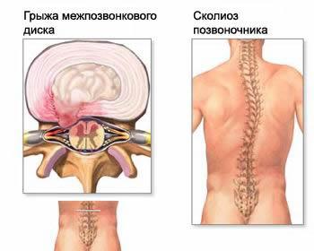Рефлекторный перекос в тонусе мышц спины при грыже диска, грыжа межпозвоночного диска, протрузия межпозвоночного диска, грыжа шморля