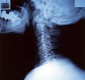 рентгенография шейного отдела позвоночника в боковой проекции, нестабильность позвоночника, смещение позвон позвонков