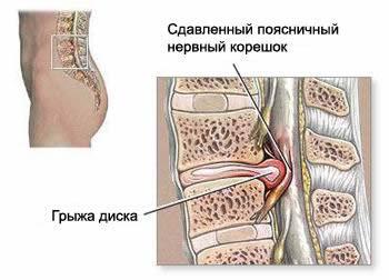 Сдавление нерва грыжей диска, грыжа межпозвоночного диска, протрузия межпозвоночного диска, грыжа шморля
