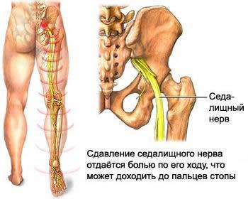 Сдавление седалищного нерва с возникновением боли в ноге, межпозвоночная грыжа диска, протрузия межпозвоночного диска, грыжа шморля