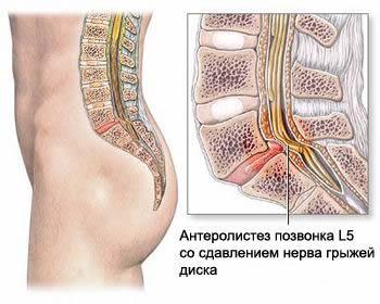 Спондилолистез позвоночника со сдавлением нерва, грыжа межпозвоночного диска, протрузия межпозвоночного диска, грыжа шморля