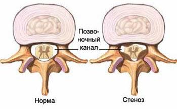 Стеноз позвоночного канал со сдавлением спинного мозга, грыжа межпозвоночного диска, протрузия межпозвоночного диска, грыжа шморля