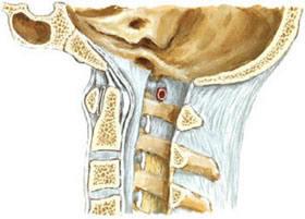 строение связочного аппарата позвоночника на уровне шейного отдела вид сбоку, нестабильность позвоночника, смещение позвон позвонков