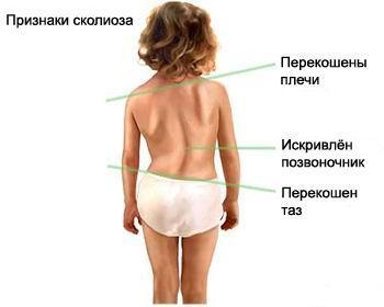 Признаки сколиоза, Сколиоз, сутулость, нарушение осанки, лечить сколиоз, лечить сутулость, лечить нарушение осанки, лечение сколиоза, лечение сутулости, лечение нарушения осанки